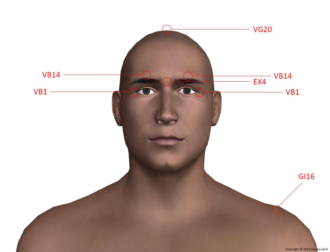 Points d'acupuncture du visage pour les migraines
