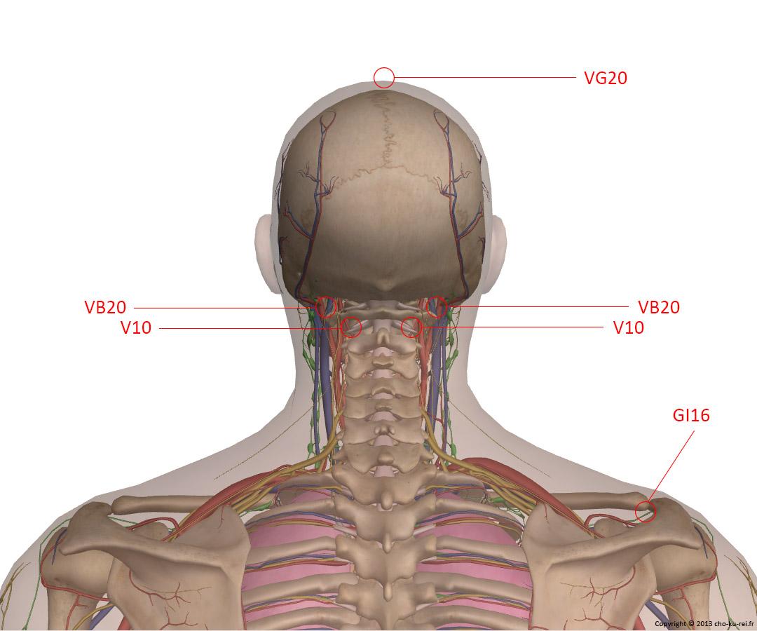 Points d'acupuncture de la nuque pour les migraines