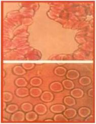 Sang avant et après 15 minutes de CEF